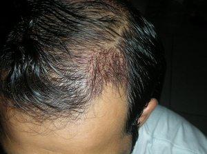 Hair Transplant in London photo