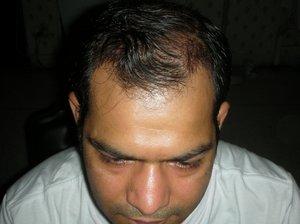 Hair Transplant London Photo