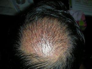 Crown area hair transplants london