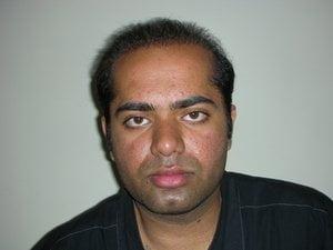Hair transplant New zealand photo