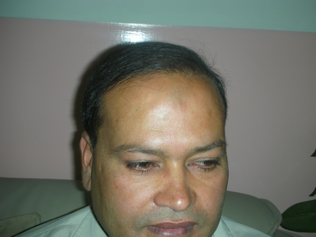 hair implant lahore photo