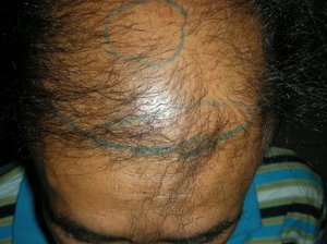 Hair Transplant in Bahawalpur Photo