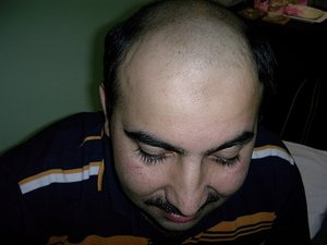 hair transplant before photo in syria