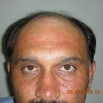 Hair Transplantation South Africa