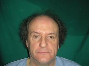Gujrat hair transplantation