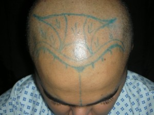 Hair Transplant in Riyadh