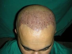FUE hair transplant in Riyadh