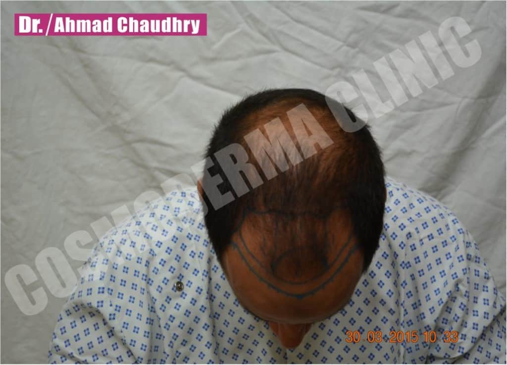 Hair loss treatment in Lahore