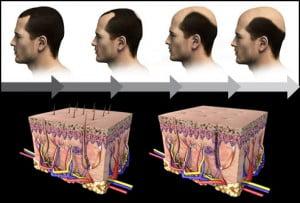 Hair transplant Bahamas