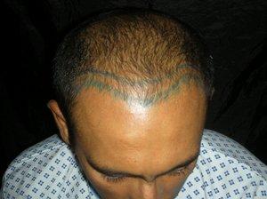 Hair transplant in Los Angeles