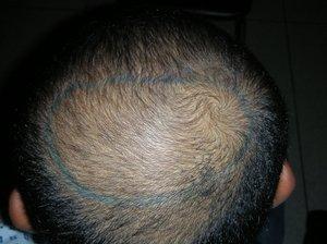 california hair transplant