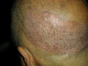Hair transplantation north carolina photo