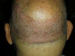 Hair transplant in North carolina photo