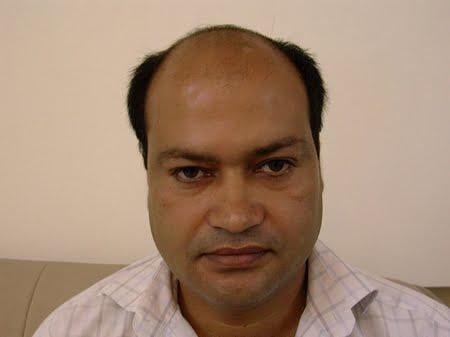 hair transplant mirpur azad kashmir