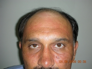 Hair transplant Abu Dhabi photo