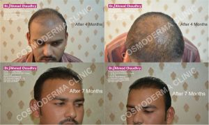 Follicular unit transplant Pakistan