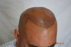 Fue hair procedure Frankfurt Germany