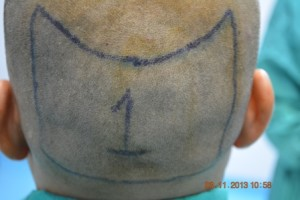 Fue hair transplant Vehari