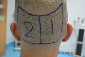 Hair restoration clinic Dubai