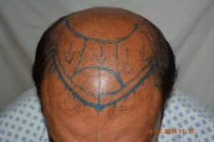 Hair transplant Germany