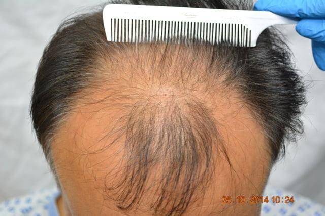 Hair transplant Tokyo