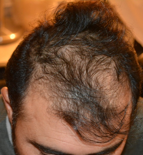 Hair transplant in Dera Ghazi Khan