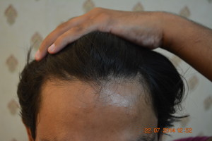 Hair transplant in Jeddah Saudi Arabia