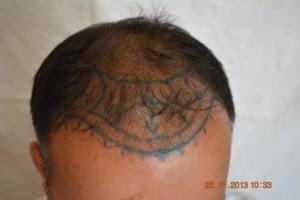 Hair treatment Burewala