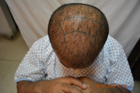 Hair transplant in Peshawar