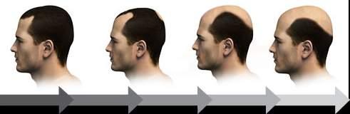 Falkland hair transplant result