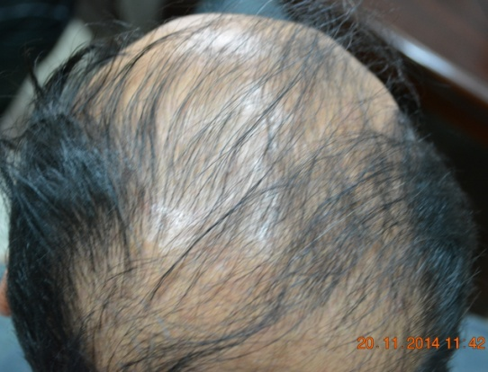 hair transplant in Kiev Ukraine