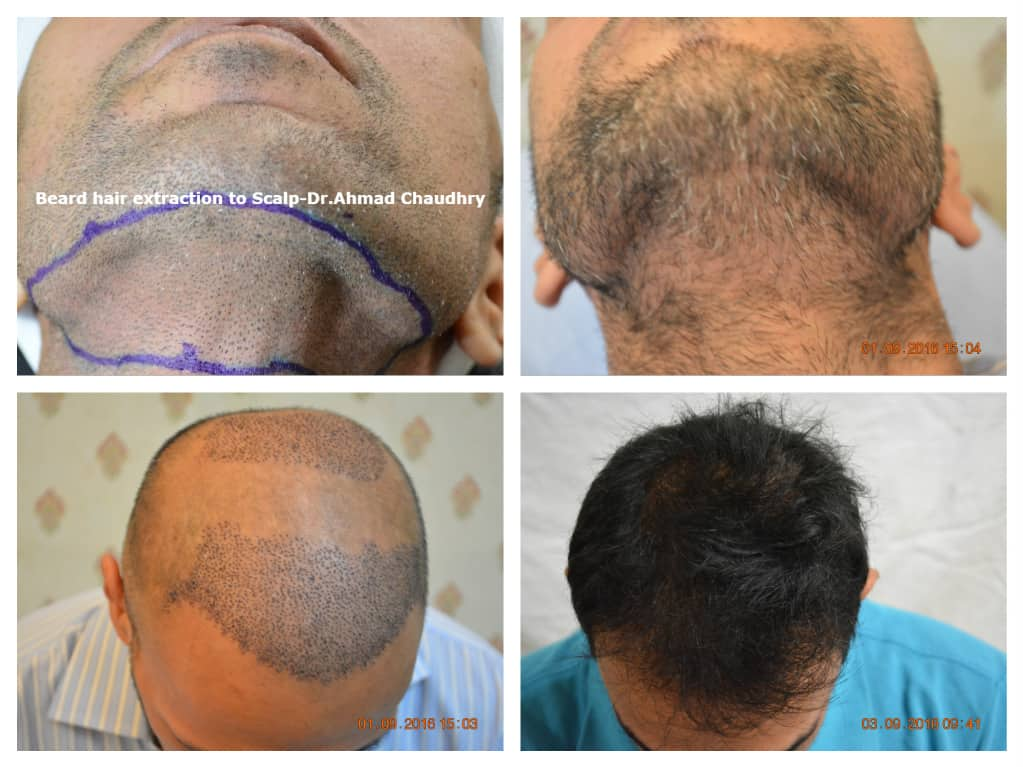 Body hair transplant results Lahore Pakistan