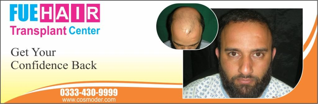 Hair Transplant Surgery Pakistan