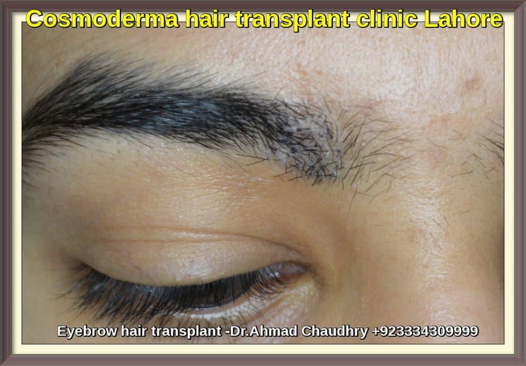 Eyebrow hair transplant in Lahore