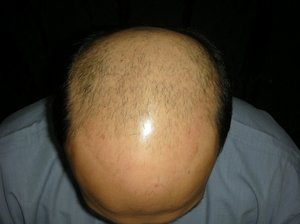 Hair transplant in Hyderabad photo