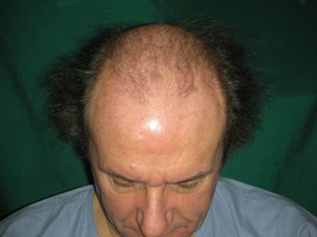 Hair restoration Lahore