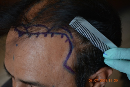 hair loss treatments in Pakistan
