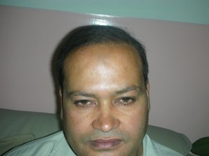 hair transplantation in mirpur photo