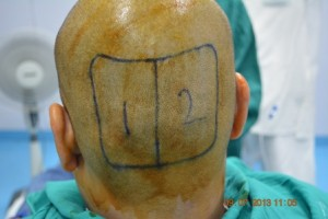 Donor site for hair transplant procedure
