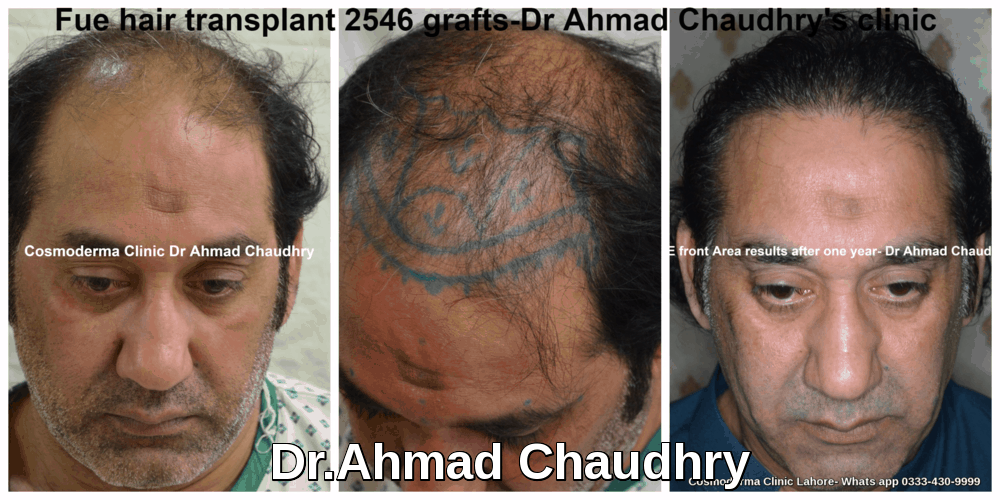Best hair transplant clinic Lahore